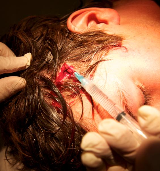 keahi head wound 1 564x600 - Keahi's Close Enocunter...